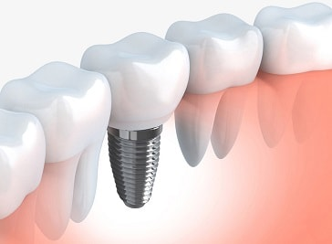Complete Dentistry in Paisley